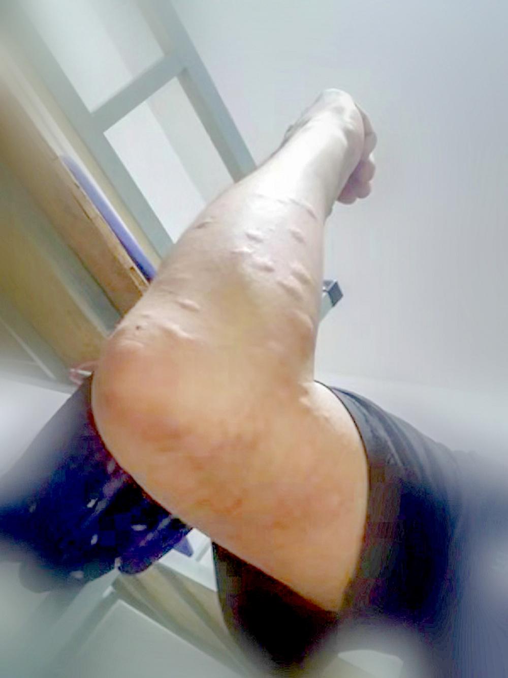 云南保山一边境警察被蚊虫叮咬红肿的照片让人心疼